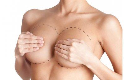 מידע חיוני על שתלי סיליקון והגדלת חזה