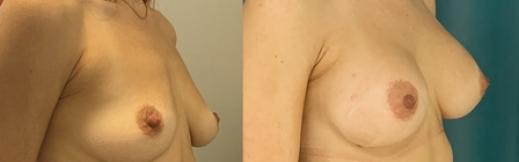 הגדלת חזה לפני ואחרי -23- ימין