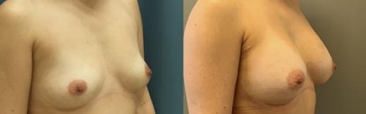 לפני ואחרי הגדלת חזה-24- ימין