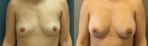 לפני ואחרי הגדלה-24- פרונט