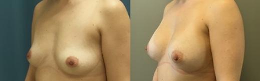 הגדלת חזה -24- שמאל לפני ואחרי