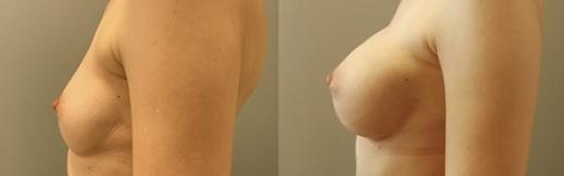 לפני ואחרי הגדלה-25- ימין