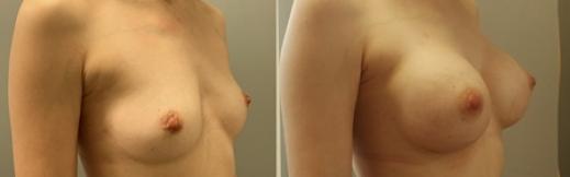 לפני ואחרי הגדלה-25- שמאל.אלכסון