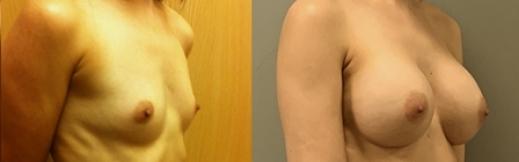 לפני ואחרי הגדלה של השדיים 3- ימין