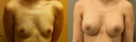 הגדלה לפני ואחרי-3- פרונט