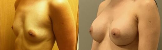 הגדלה לפני ואחרי -3- שמאל