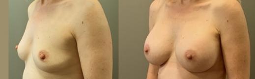 הגדלת חזה - 29 - שמאל אלכסון
