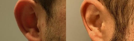 הצמדת אוזניים - 14 - צד ימין