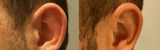 הצמדת אוזניים - 14 - צד שמאל