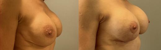 הרמה והגדלה - 14 - שמאל אלכסון