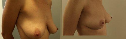 הרמת חזה לפני ואחרי צד ימין
