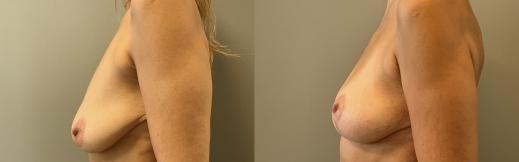 הרמת חזה לפני ואחרי-7- ימין