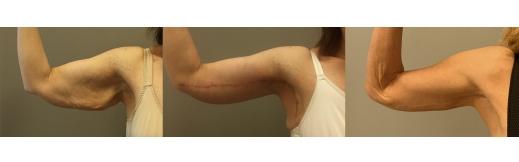 1-ימין-מתיחת זרועות
