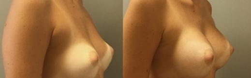 ימין-18 - הגדלת חזה לפני ואחרי תמונה