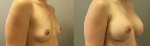 ימין- 20- הגדלת חזה לפני ואחרי