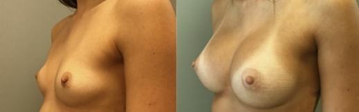 ימין- 21- הגדלת חזה לפני ואחרי