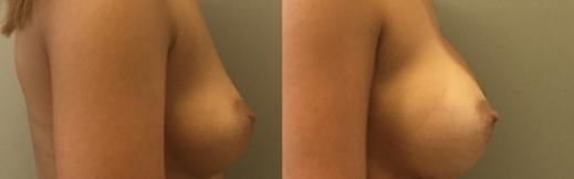 ימין - 22- הגדלת חזה לפני ואחרי