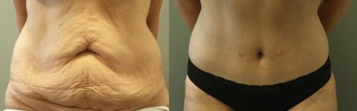 מתיחת-בטן לפני ואחרי צד קידמי
