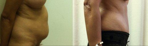מתיחת בטן-2-ימין לפני אחרי
