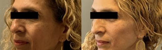 מתיחת פנים - 11 - שמאל אלכסון