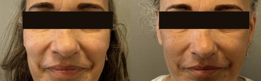 מתיחת פנים - 8 פרונט (1)