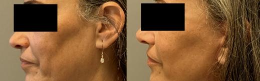 מתיחת צוואר - 8- שמאל (1)