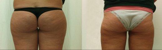 ניתוח שאיבת שומן לפני אחרי