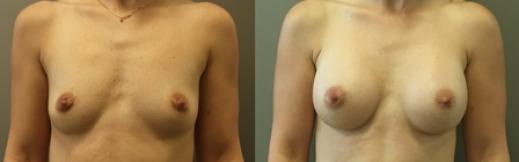 לפני ואחרי פרונט - 20- הגדלת חזה