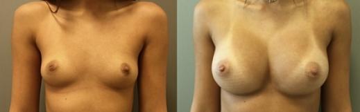 לפני ואחרי קידמי - 21- הגדלת חזה