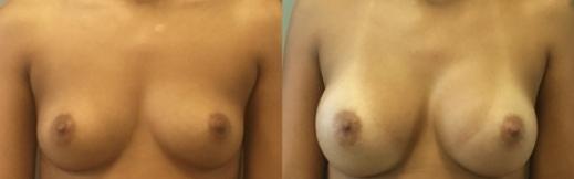 פרונט - 22- הגדלת חזה לפני ואחרי