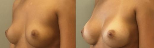 לפני ואחרי שמאל אלכסון - 22- הגדלת חזה
