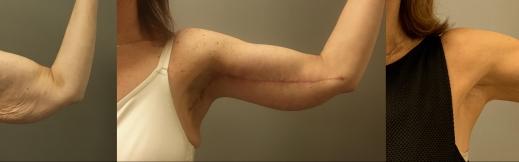 1-שמאל-מתיחת זרועות