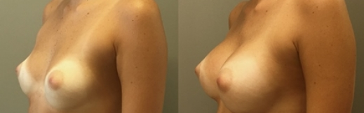 שמאל-18 - הגדלת חזה לפני ואחרי