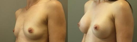 לפני ואחרי שמאל- 20- הגדלת חזה