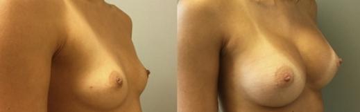 לפני ואחרי שמאל- 21- הגדלת חזה