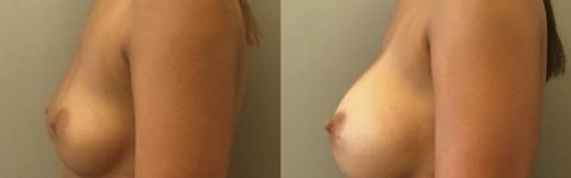 שמאל - 22- הגדלת חזה לפני ואחרי