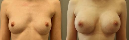 לפני ואחרי הגדלה-25- פרונט