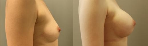 לפני ואחרי הגדלה-25- שמאל