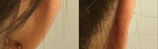 הצמדת אוזניים תמונה לפני ואחרי