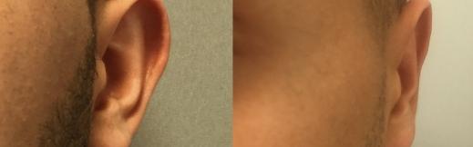 הצמדת אוזניים 11-שמאל-
