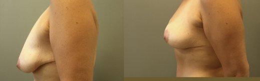 הרמת חזה לפני ואחרי פרופיל שמאל