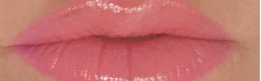 חומצה היאלורונית בשפתיים לפני ואחרי