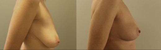 ימין -1_1-הרמת חזה לפני ואחרי