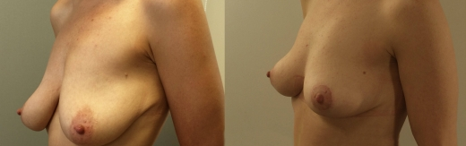 לפני-אחרי-הרמת-חזה