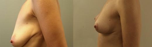 לפני-אחרי-ניתוח-הרמת-חזה