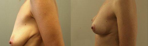 לפני אחרי ניתוח הרמת חזה