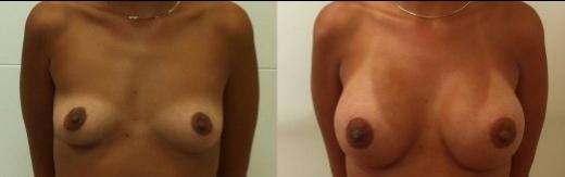 לפני-אחרי-ניתוח-להגדלת-חזה