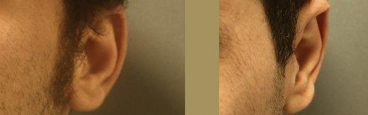 לפני ניתוח הצמדת אוזניים - ימין