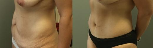 מתיחת-בטן לפני ואחרי צד שמאל