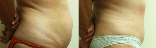 מתיחת בטן-תמונה לפני אחרי ניתוח